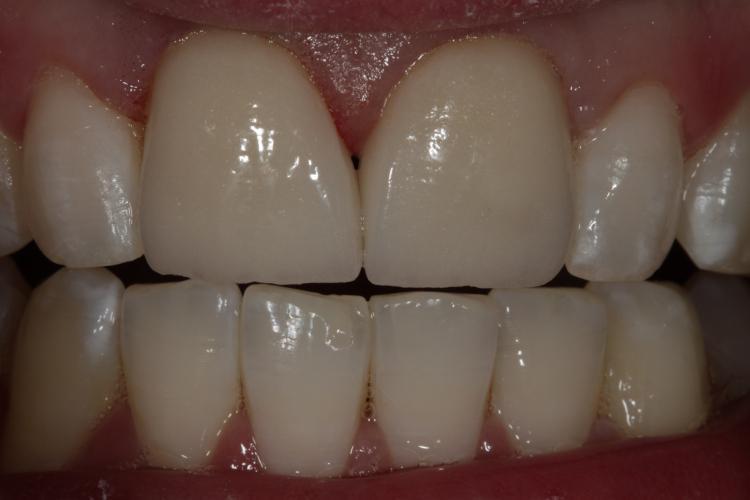 Weiße Zähne helle Zähne Schneidezähne Zirkonkronen