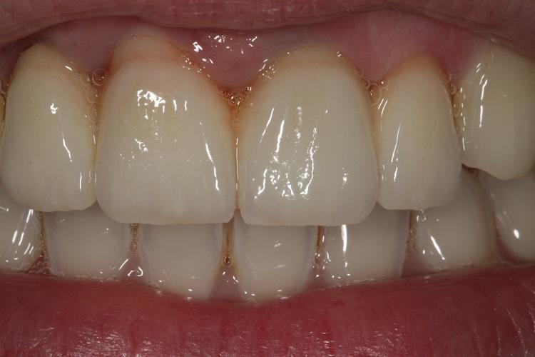 Zahnersatz aus Zirkon